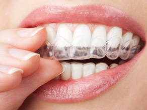Invisalign chester Springs PA