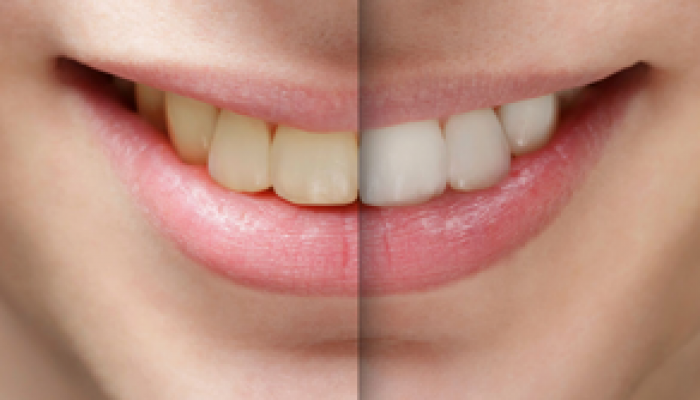 Did you know that teeth whitening is the cosmetic dental procedure, chester springs